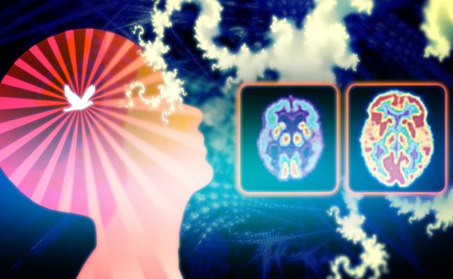 Inilah yang Terjadi pada Otak Saat Meditasi (dan Manfaatnya)