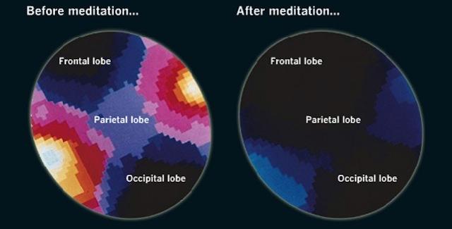20130905 Inilah yang Terjadi pada Otak Saat Meditasi (dan Manfaatnya)_2